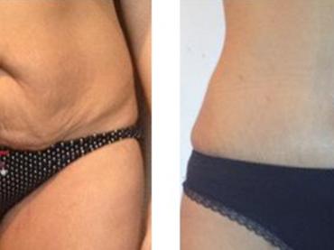 L'abdominoplastie traite le relâchement de la peau du ventre