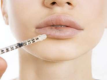 Comment vous assurer d'un aspect naturel lors de l'augmentation des lèvres