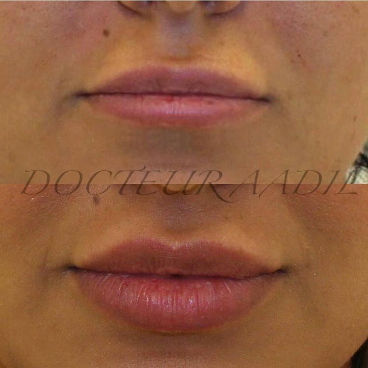 Augmentation des lèvres sans chirurgie