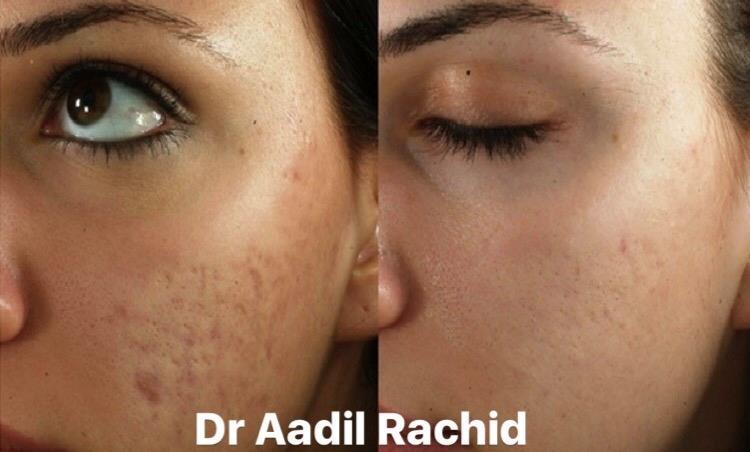 Traitement des cicatrices et tâches d'acné