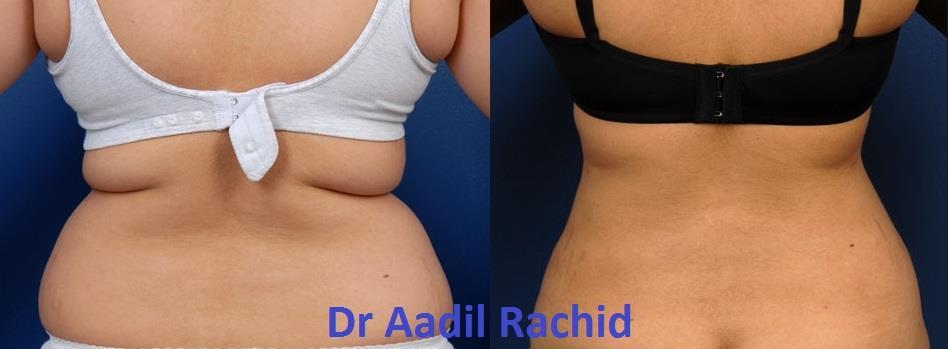 Liposuccion du dos et côté