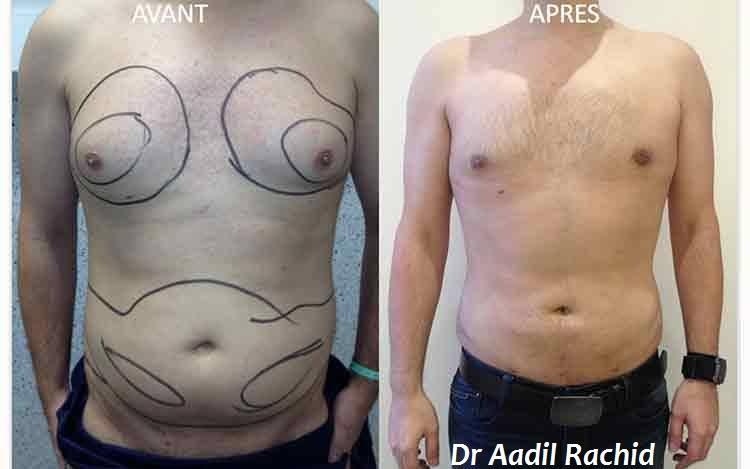 Gynécomastie : réduction mammaire chez les hommes