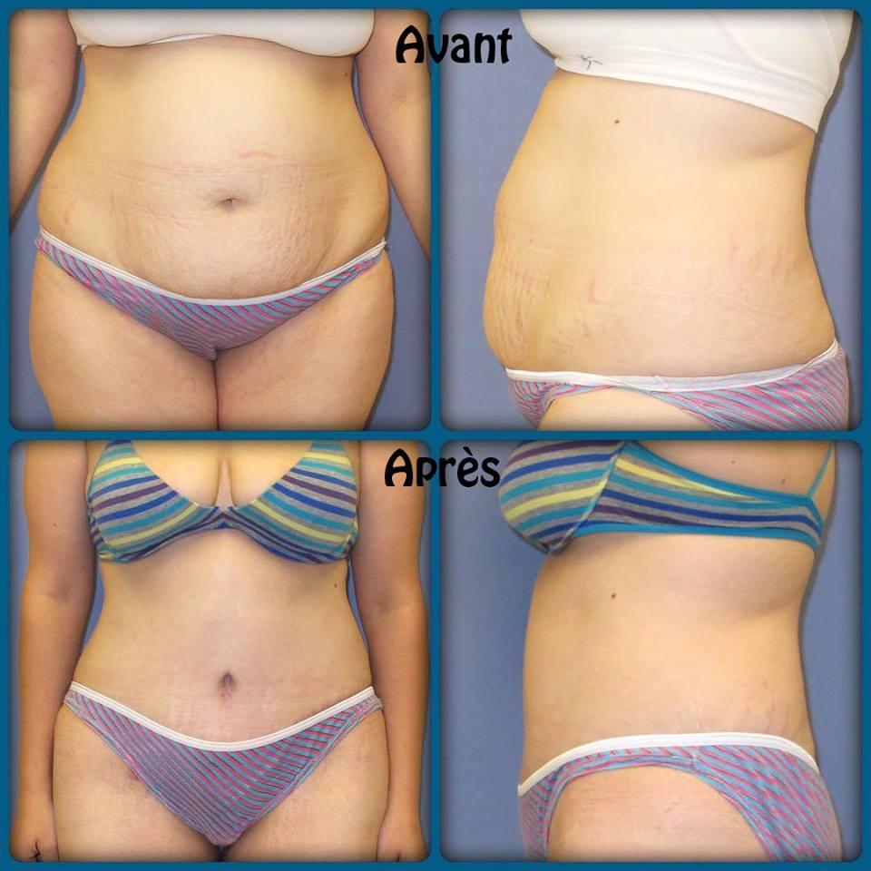 Abdominoplastie pour correction du ventre abîmé