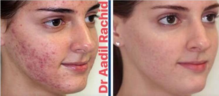 cicatrice acné avant aprés