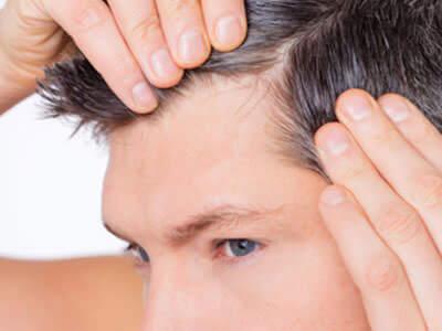 La greffe de cheveux sans cicatrices