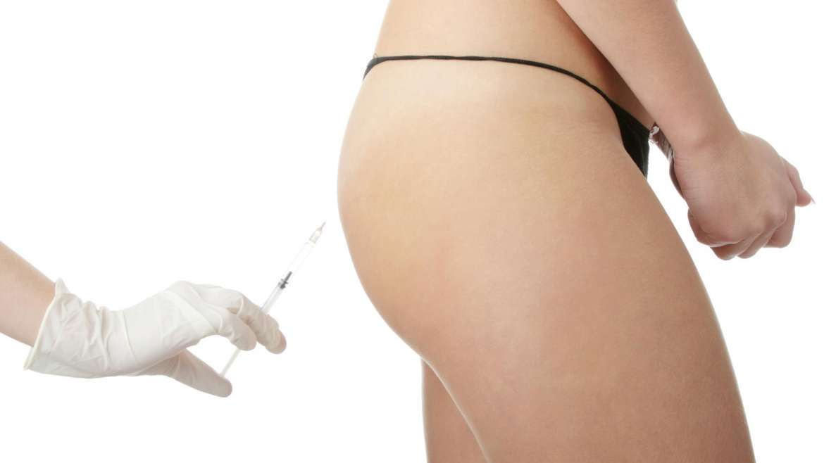 INJECTION DES FESSES PAR L'ACIDE HYALURONIQUE